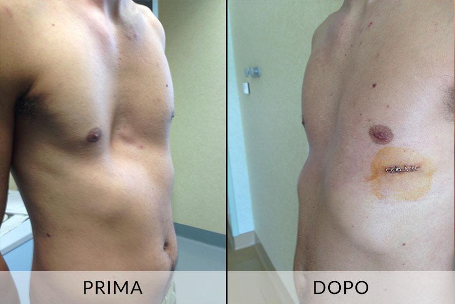 Spina dorsale bifida di reparto di petto